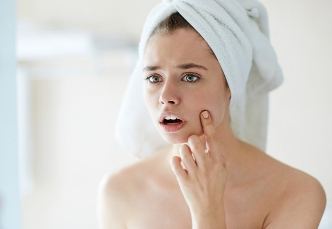 Как да се погрижите за кожа с акне през лятото? Характеристики, козметика и грижа